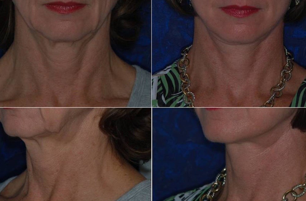 Considering a Facelift?